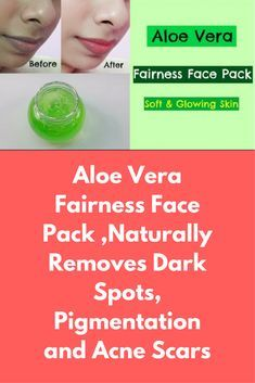 Aloe Vera Fairness Face Pack ,Naturally Removes Dark Spots, Pigmentation and Acne Scars Face Pack 1 Ingredients : Aloe Vera Gel (1 tsp) Malai or Milk Cream (2 tsp) Turmeric Powder (a pinch) Mix all the ingredients, apply on your face and neck. Leave it for 30 minutes and then wash it off with lukewarm water. Apply the pack every alternate day. Face Pack 2 Ingredients : Aloe …