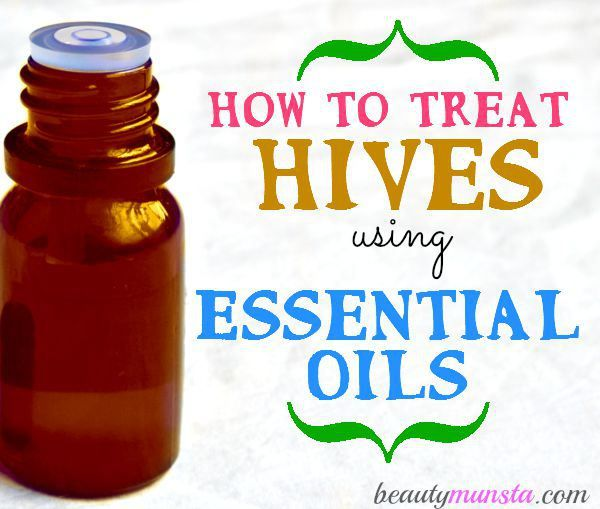 5 of the Best Essential Oils to Treat Hives