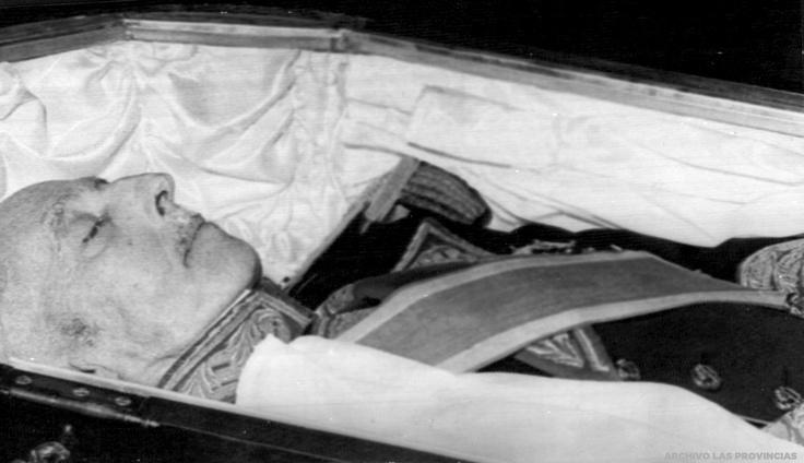 17 Best Images About Famous Cadavers On Pinterest Jfk