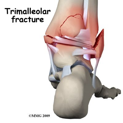 "trimalleolar fracture | These Days"": Broken Ankle - Trimalleolar Ankle Fracture"