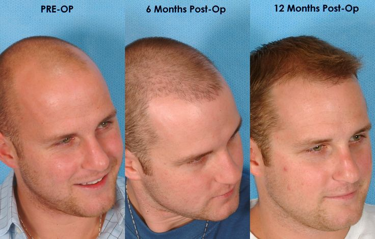 The best FUT hair transplant in Dubai is now available at Dubai hair club. It is the finest option if you need to get quality services with affordable rates.