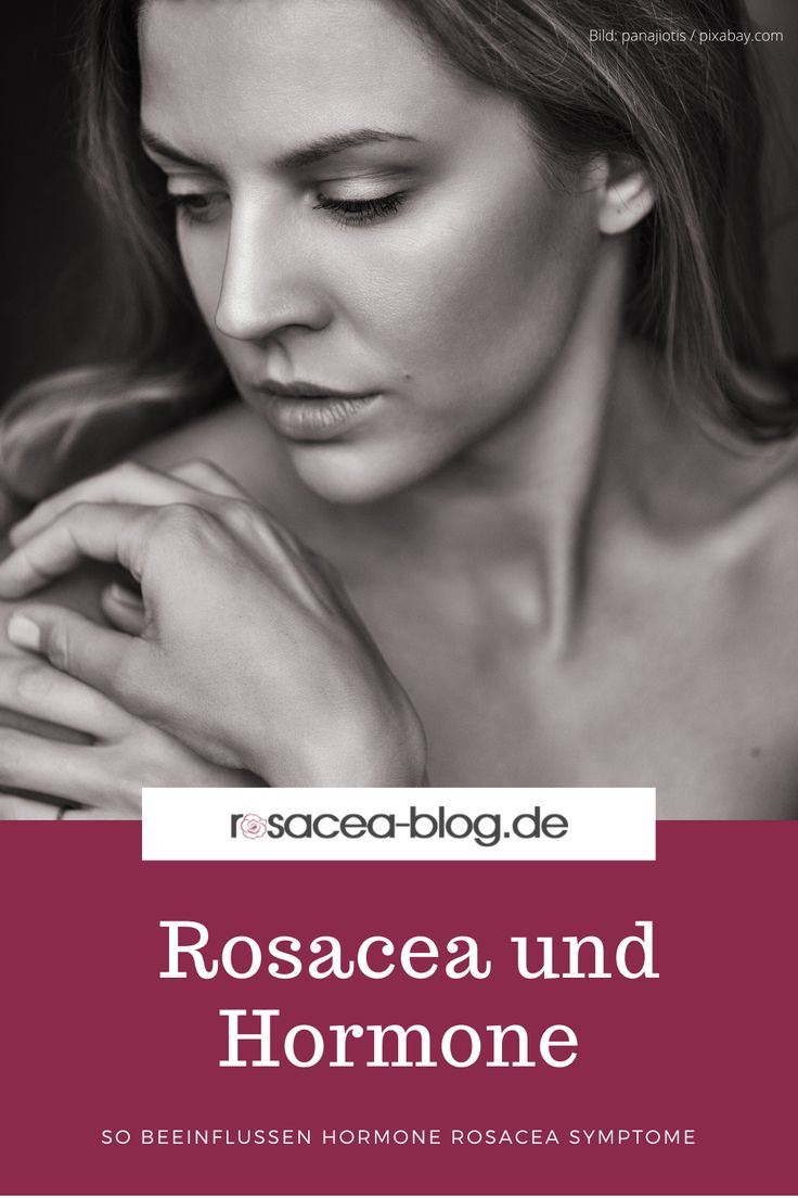 Hormone und Rosacea - Östrogen & Progesteron   rosacea