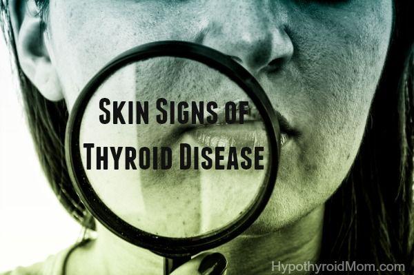Skin Signs of Hypothyroidism & Hyperthyroidism HypothyroidMom.com #skinissues #hypothyroidism #hyperthyroidism