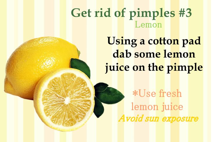 picture4   How to get rid of pimples, Pimples, Zits