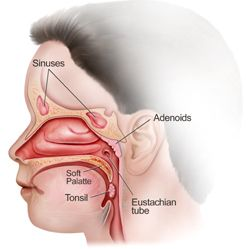 Tonsils and Adenoids - Natural ways to heal