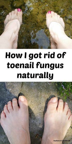 How I got rid of toenail fungus with essential oil