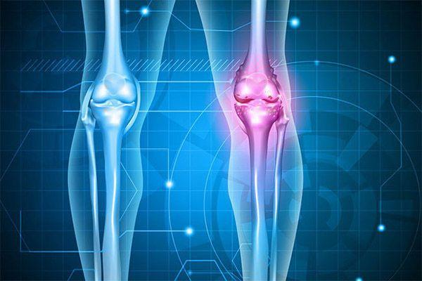 Cartilax - Dores nas Articulações? Veja isso e acabe com as dores - UC2