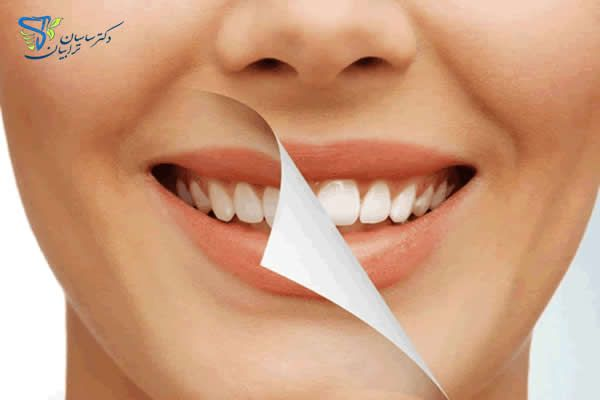 علت زردی دندان ها Cosmetic Dentist Dentist Dentistry
