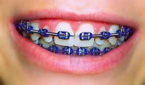 DARK BLUE BRACES!!