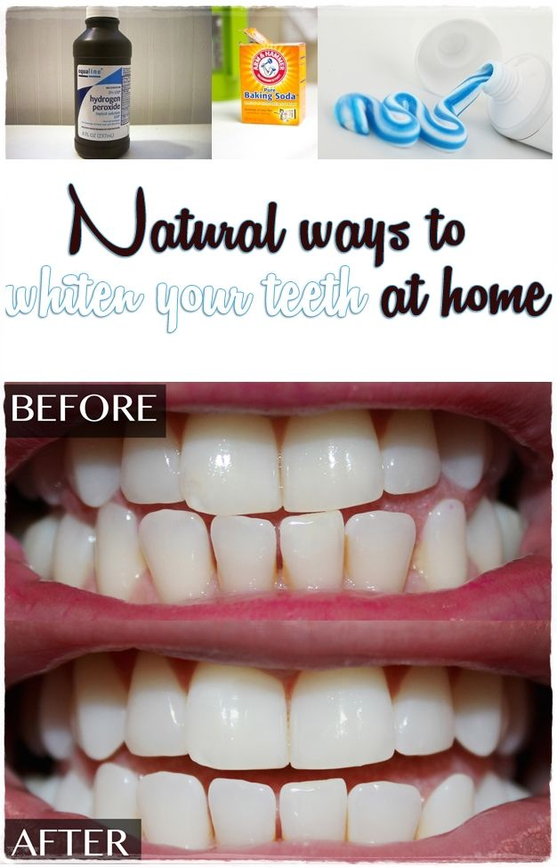 Natural Ways To Whiten Your Teeth At Home By Magazinez Net Skin