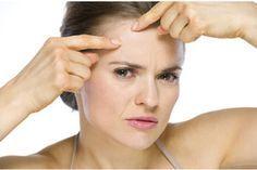 .Beauty Hacks: 10 SOS-Tipps gegen Pickel > Kleine Zeitung