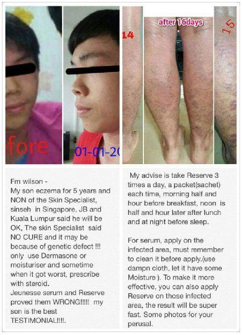 Jeunesse Luminesce testimonial - eczema