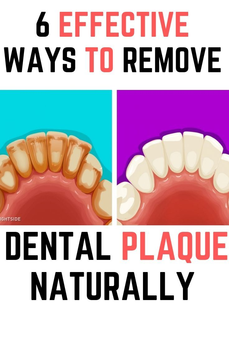 6 effective ways to remove dental plaque naturally