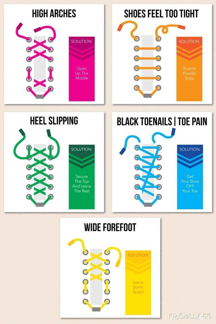 How to Lace Your Tennis Shoes According to Different Problems - Runners Joggers Walkers Too Tight High Arches Heel Slipping Bruised Toes: