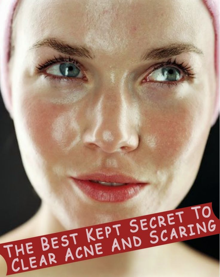 The Best Kept Secret To Clear Acne And Scaring...Trust me it works