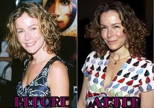 Jennifer Grey Plastic Surgery Photos