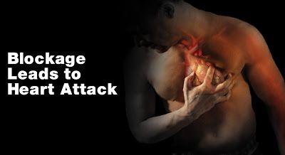 Ayurvedic Upay for Heart Blockage (high cholesterol)