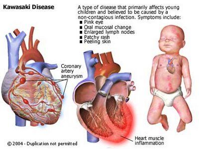Kawasaki Disease.  This is why i never let my boys, even us, walk on recently chemically cleaned carpets!