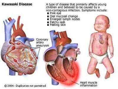 #Kawasaki #Disease