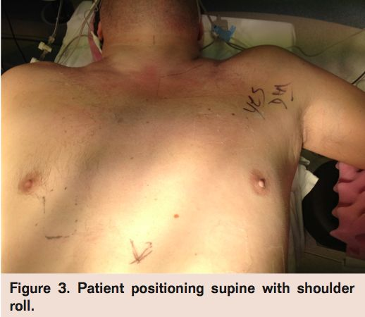 """Modified """"Trap Door"""" Approach for Thoracic Outlet Syndrome Complicated by Subclavian Artery Aneurysm Volume 10 - Issue 4 - April 2013  Elias Kfoury, MD, Paul D. Kiernan, MD, Dipankar Mukherjee, MD http://www.vasculardiseasemanagement.com/content/modified-%E2%80%9Ctrap-door%E2%80%9D-approach-thoracic-outlet-syndrome-complicated-subclavian-artery-aneurys"""