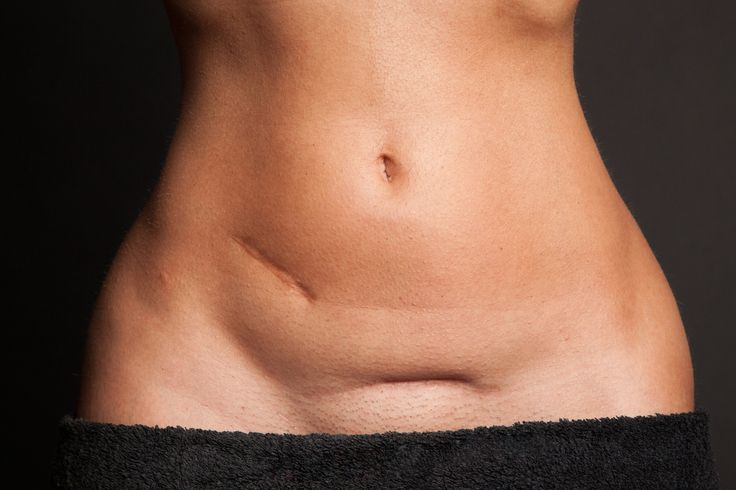 Best 20 C Section Belly Ideas On Pinterest Postpartum