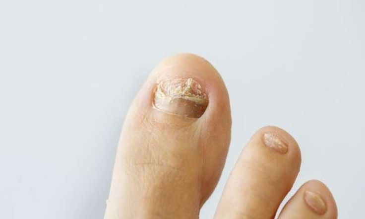 Avoid unsightly fungal toenail infections
