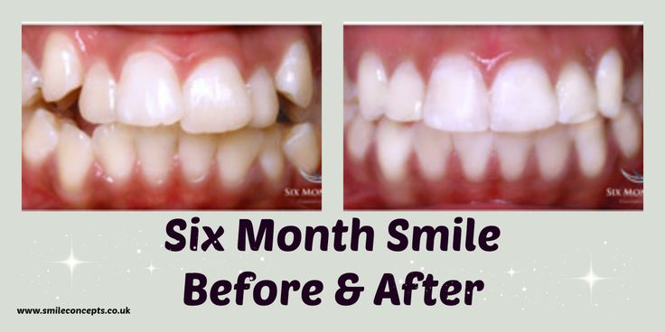 I Would Like Straight Teeth!  If you don't like your smile because your teeth are crowded, crooked or twisted then we can straighten them!  Here at Smile Concepts we are able to offer a number of options to help to give you the smile that you want!  www.smileconcepts.co.uk