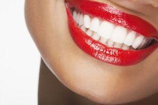Blanqueamiento dental http://blgs.co/bV6G9s