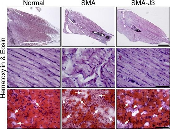 Molecular mechanism underlying neurodegeneration in spinal muscular atrophy identified.