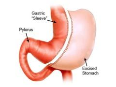 The Truth About Vertical Sleeve Gastrectomy Long Term Complications - http://www.weightlossia.com/the-truth-about-vertical-sleeve-gastrectomy-long-term-complications/