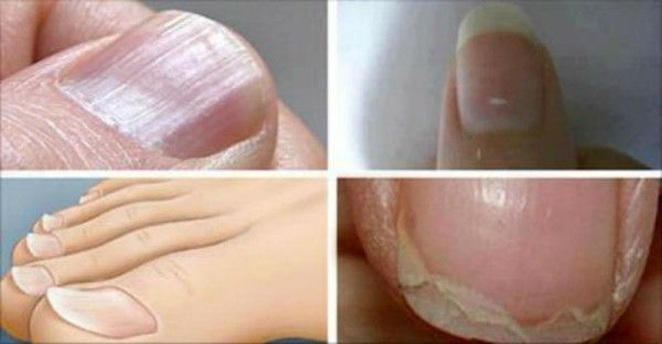 Red nail beds: coronary illness  Yellow nails: Chronic bronchitis  Upward-bending nails: infection of the thyroid  Fragile nails: hyperthyroidism  White nail beds: infection of the liver  Blue nail beds: blood flow issues