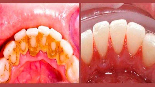 La solución final para remover el sarro que los dentistas ocultan, pero que tienes que saber   Salud con Remedios