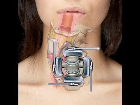 Cervical Spine Surgery (ACDF) - Swallow & Voice Problems. For more info http://www.fauquierent.net/swallow.htm