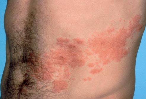What is Shingles? If you've ever had the chickenpox -- and almost all adults have -- there's a good chance the virus is still at large in your body. The varicella-zoster virus can lie dormant for decades without causing any symptoms. In some people, the virus wakes up and travels along nerve fibers to the skin. The result is a distinctive, painful rash called shingles.
