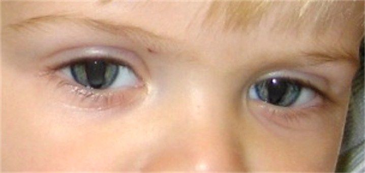 Bilateral iris coloboma. | Human Oddities | Pinterest | Posts, As ...