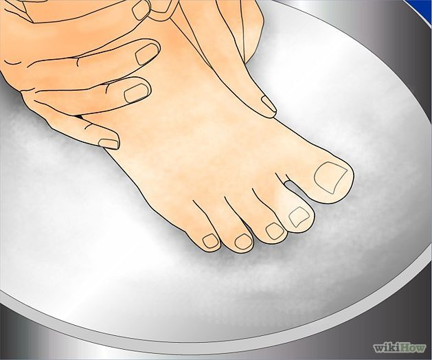how to get rid of planters warts