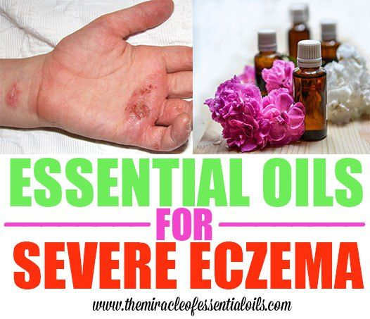 essential oils for severe eczema