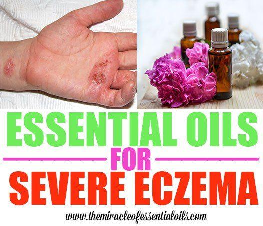 essential oils for severe eczema