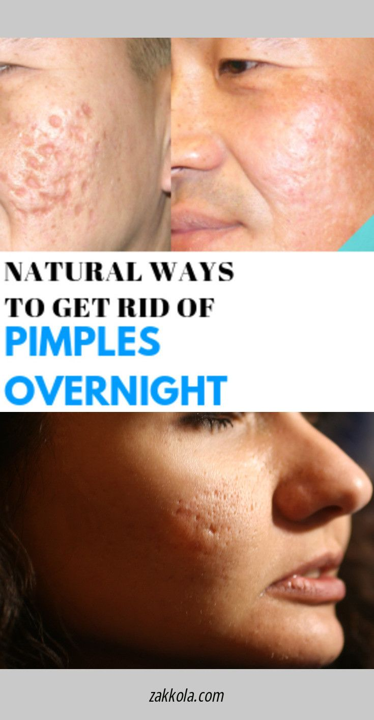 Pin On Acne Treatment
