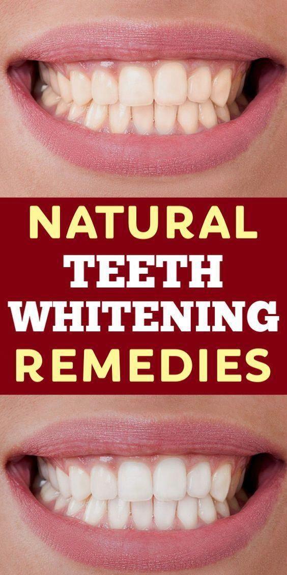 3 Natural Teeth Whitening Remedies # Zahnaufhellung # Schönheit # Schönheitstipps # Mundpfleg…