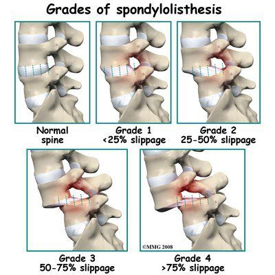 Spondylolisthesis...Grades of slippage. I have grade 3 in both my lumbar and cervical spine
