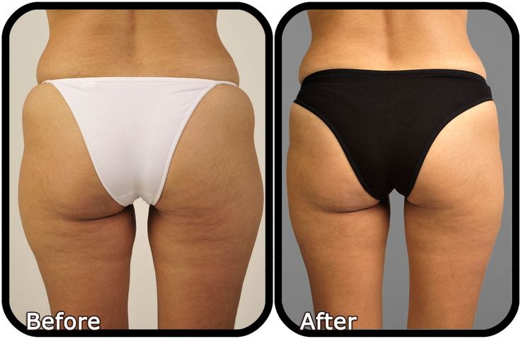Cellulite Before and After Is there a cure?