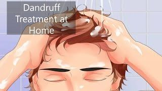 Dandruff Treatment at Home | 3 Ways of Dandruff Treatment at Home