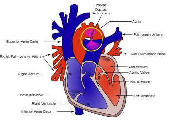 Patent Ductus Arteriosus (One of Joseph's heart defects)