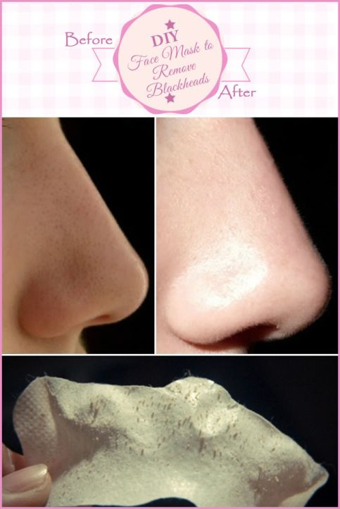 DIY Face Mask to Remove Blackheads