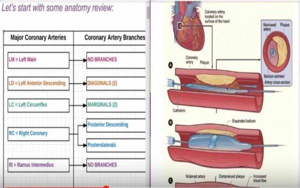 Percutaneous Coronary Intervention (PCI) CPT Coding - Angioplasty Coding