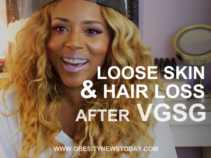 This video is about some of the side effects you may face after Vertical Gastric Sleeve Gastrectomy. Loose skin, hair loss, and acid reflux are all common. Get to know more about weight loss surgery and obesity. Learn more aboutSleeve Gastrectomy:http://bit.ly/1YtQLp9 ObesityNews Today is strictly a news and information website about the disease. It does …