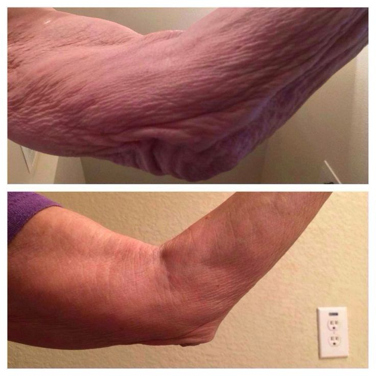 how to buy nerium products in canada