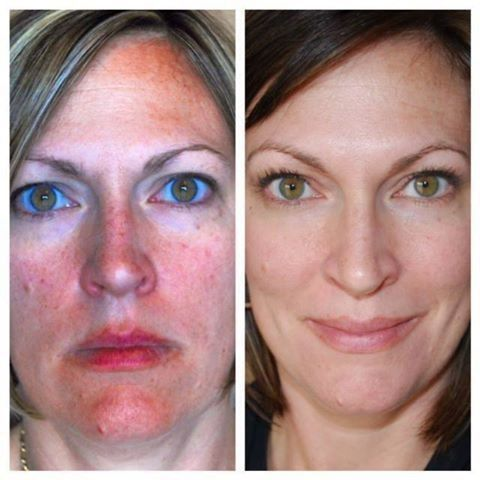 Another Awesome Before And After From Rodan Fields 60