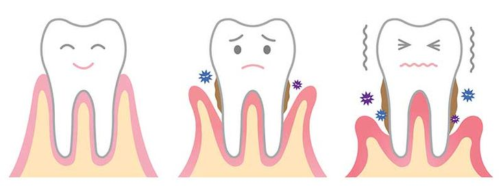 Receding Gums – Your Prevention and Healing Guide